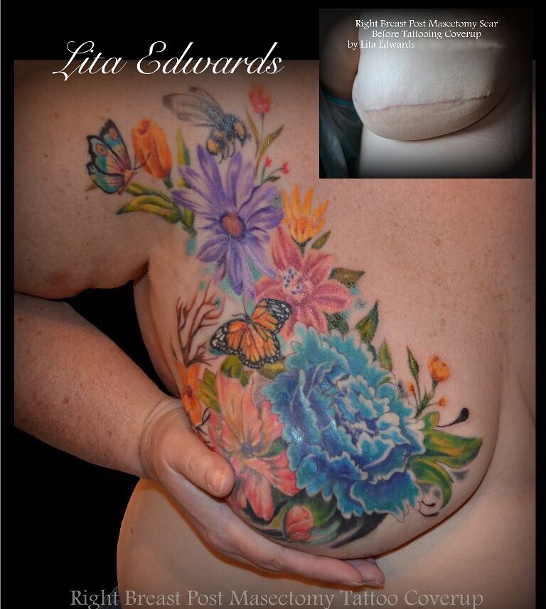 Floral Art Scar Coverage